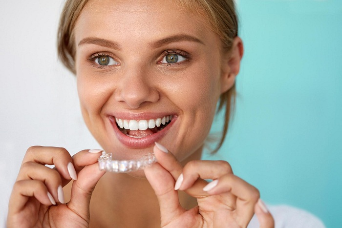 3 Unexpected Invisalign Benefits