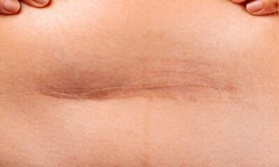 Most Effective Techniques To Treat Stretch Marks